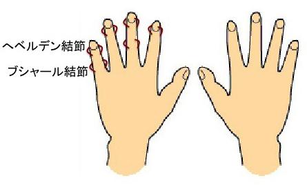 乾癬 関節 性