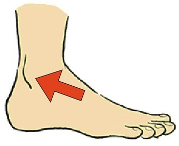 が 足首 痛い 外側 の